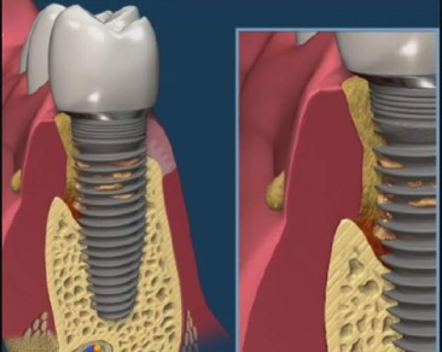 Artrite reumatoide e malattia delle gengive, sono legate a doppio filo